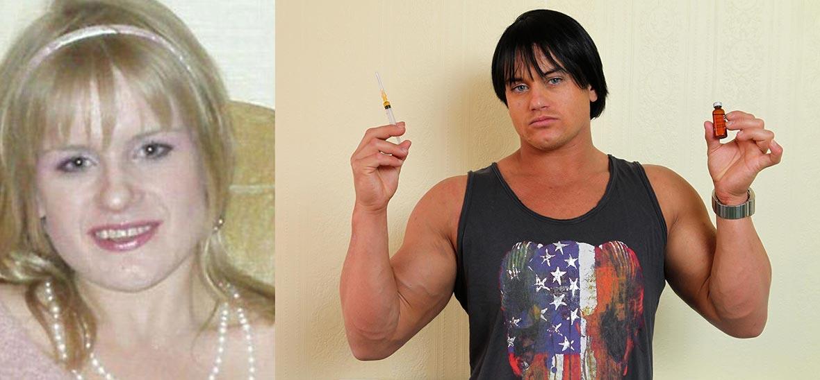 На фото девушка Кэндис Армстронг до и после продолжительного приема анаболических стероидов.